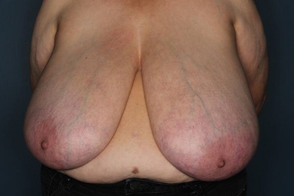 Breast Reduction Patient 05 Before