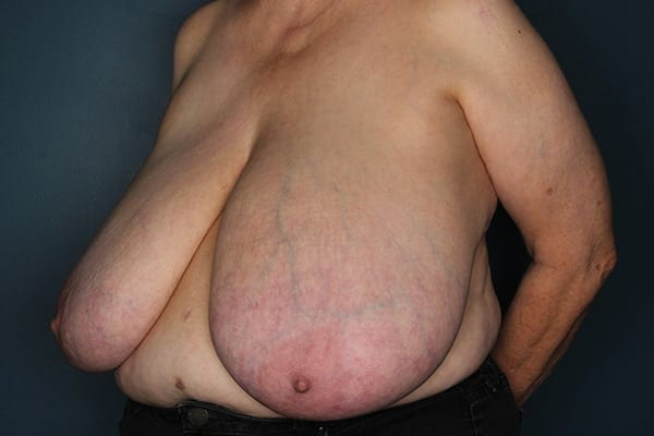 Breast Reduction Patient 05 Before - 2