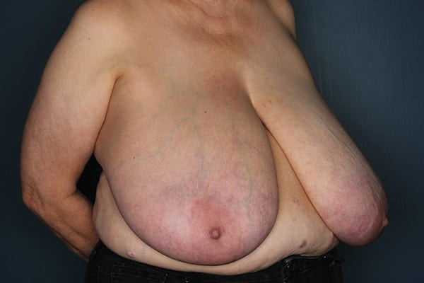 Breast Reduction Patient 05 Before - 3