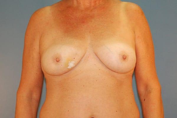 Latissimus Flap Reconstruction Patient 08 Before - 1