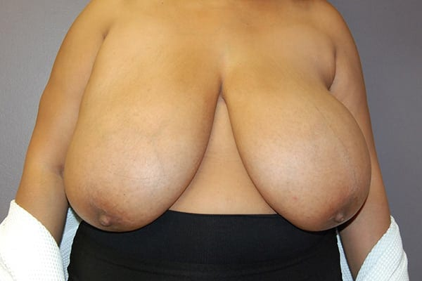 Breast Reduction Patient 06 Before