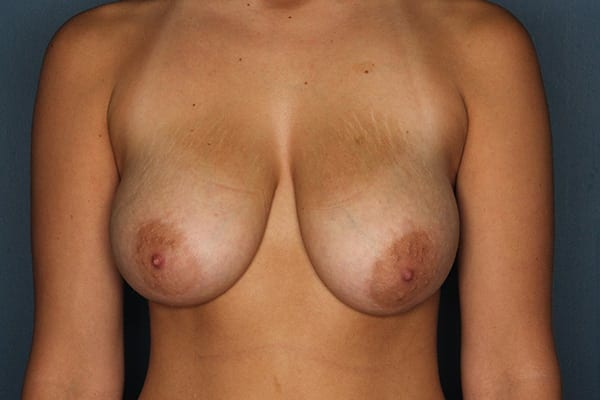 Breast Reduction Patient 07 Before