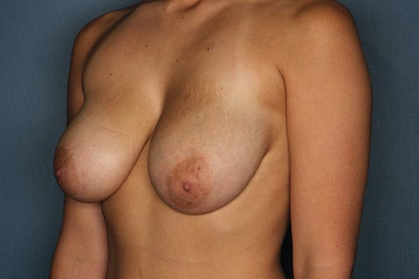 Breast Reduction Patient 07 Before - 2