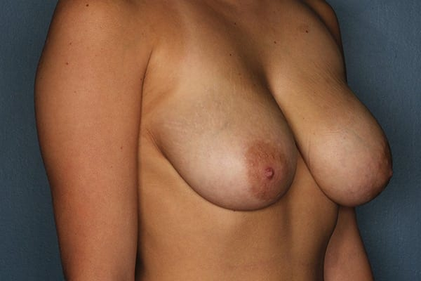 Breast Reduction Patient 07 Before - 3