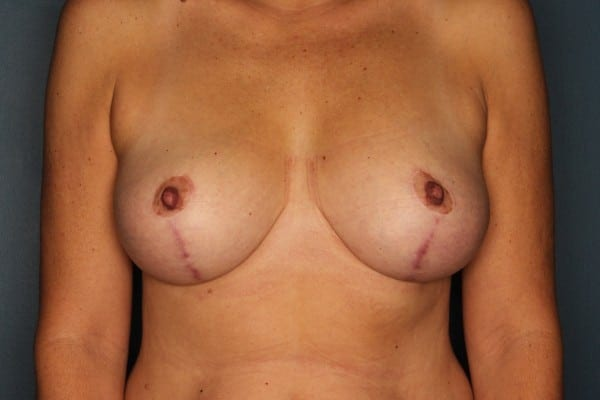 Mastopexy Patient 05 After - 1