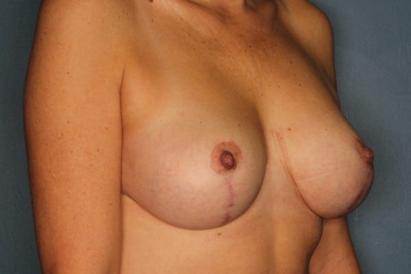 Mastopexy Patient 05 After - 2