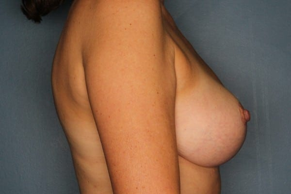 Mastopexy Patient 05 After - 3