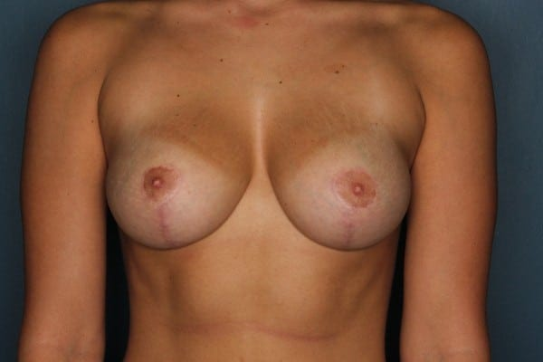 Breast Reduction Patient 07 After