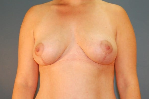 Mastopexy Patient 03 After - 1