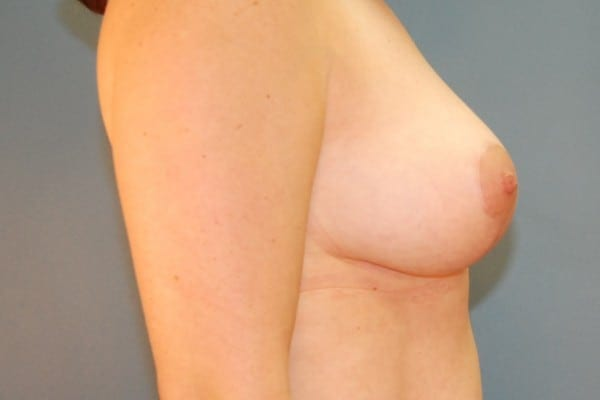 Mastopexy Patient 03 After - 3
