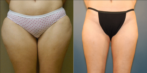 Will Liposuction Remove My Fat Forever Dr Al Cohn