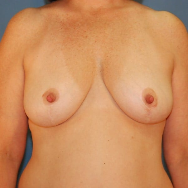 Mastopexy Patient 07 After - 1