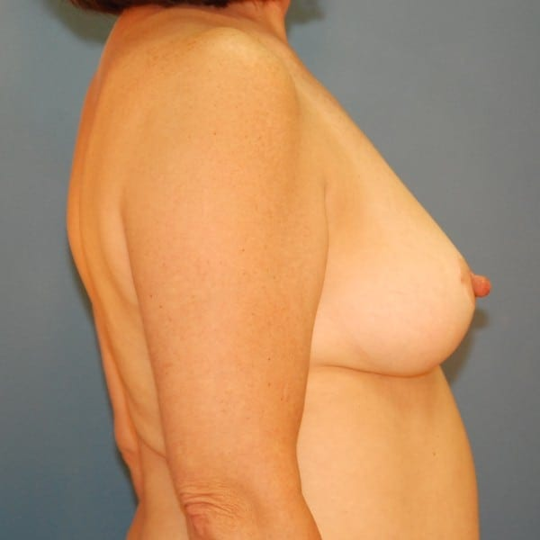 Mastopexy Patient 07 After - 2