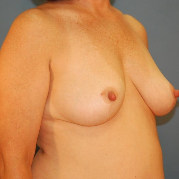 Mastopexy Patient 07 After - 3