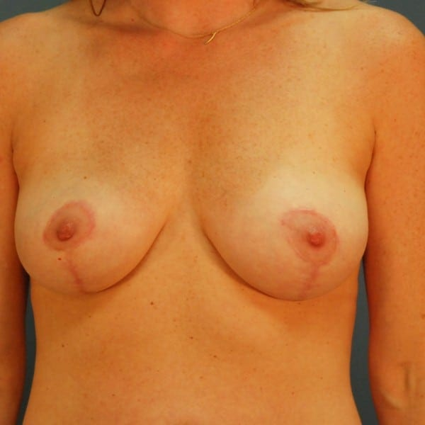 Mastopexy Patient 08 After - 1