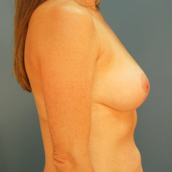 Mastopexy Patient 08 After - 3