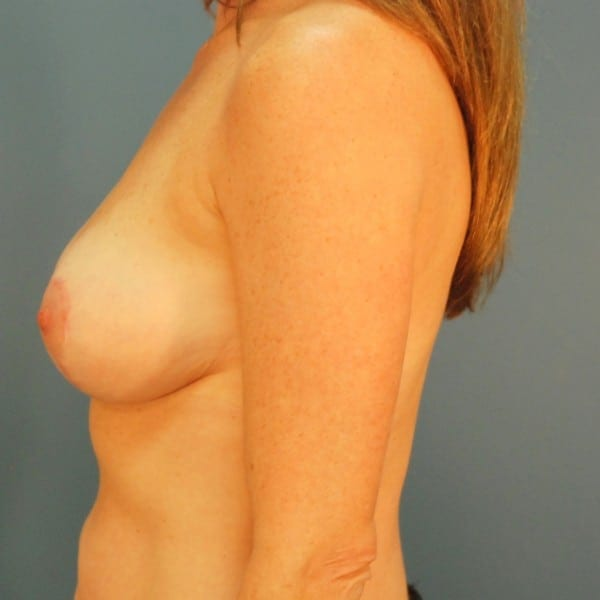 Mastopexy Patient 08 After - 2