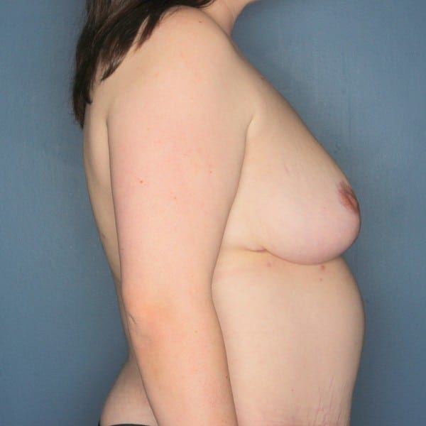 Mastopexy Patient 09 After - 3