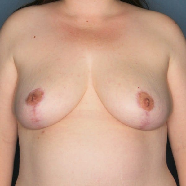 Mastopexy Patient 09 After - 1
