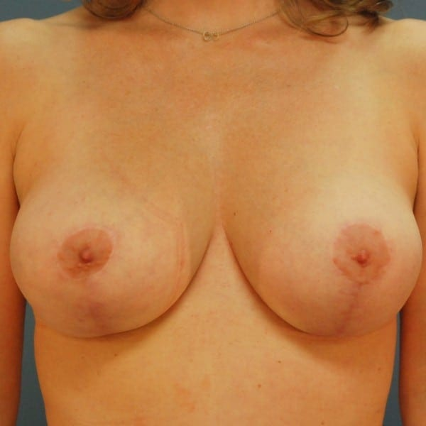 Mastopexy Patient 01 After - 1