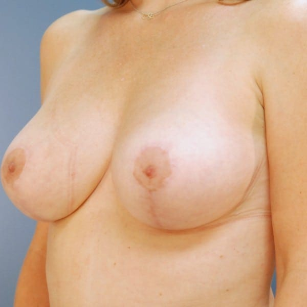 Mastopexy Patient 01 After - 3