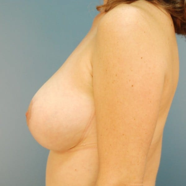 Mastopexy Patient 01 After - 2