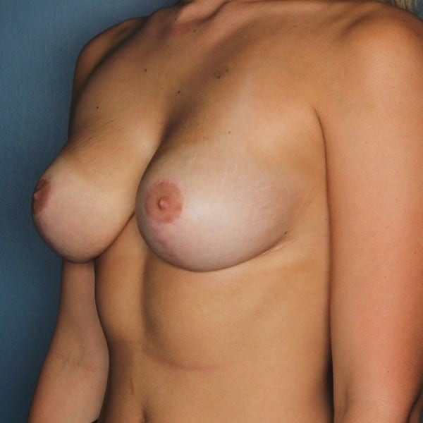 Mastopexy Patient 11 After - 2