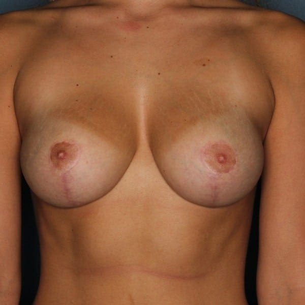 Mastopexy Patient 11 After - 1