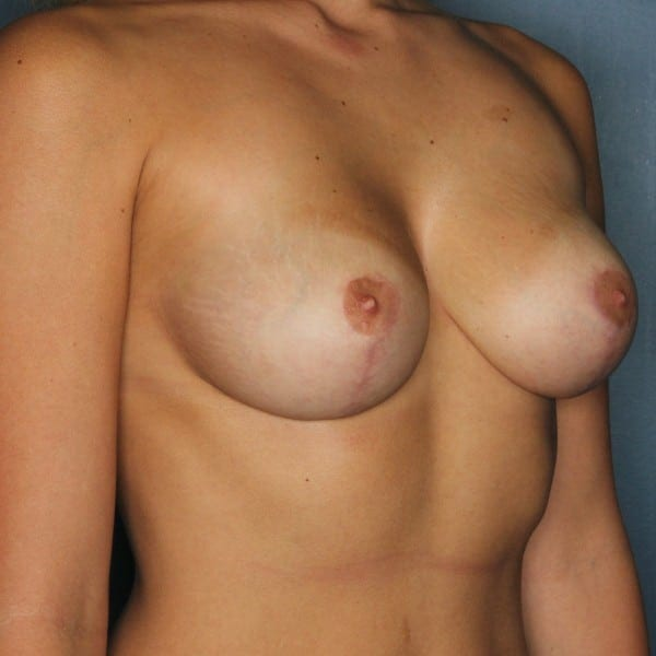 Mastopexy Patient 11 After - 3