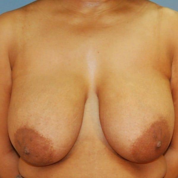 Mastopexy Patient 12 Before - 1