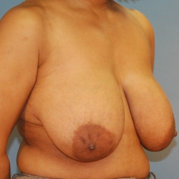 Mastopexy Patient 12 Before - 2