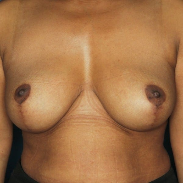Mastopexy Patient 12 After - 1