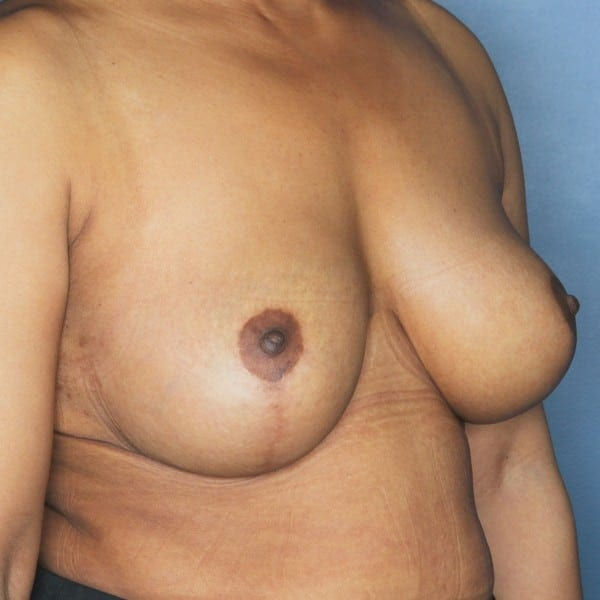Mastopexy Patient 12 After - 2