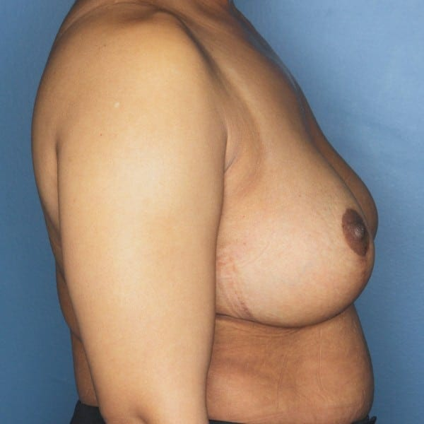 Mastopexy Patient 12 After - 3