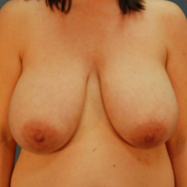 Breast Reduction Patient 13 Before