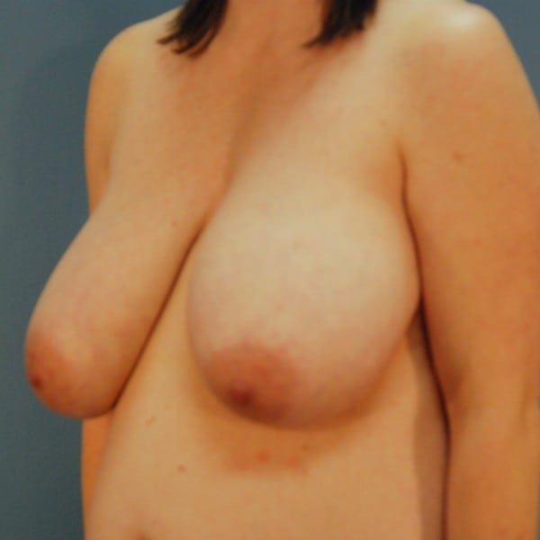 Breast Reduction Patient 13 Before - 2