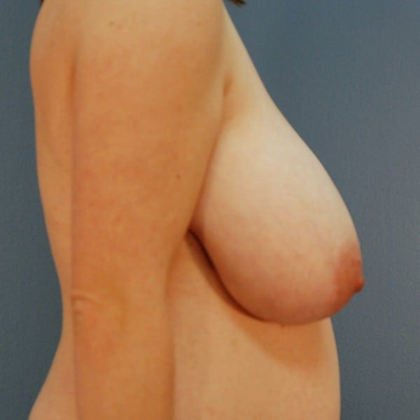 Breast Reduction Patient 13 Before - 3