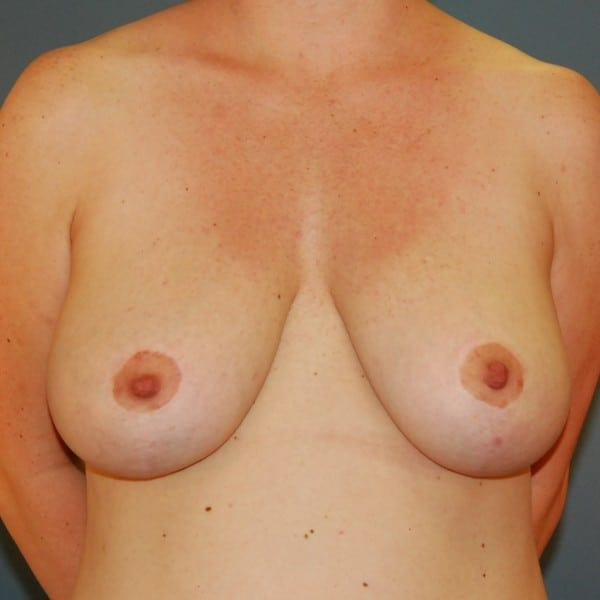 Breast Reduction Patient 13 After