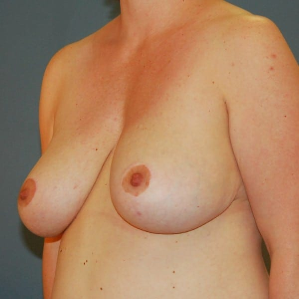 Breast Reduction Patient 13 After - 2