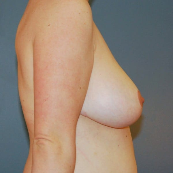 Breast Reduction Patient 13 After - 3