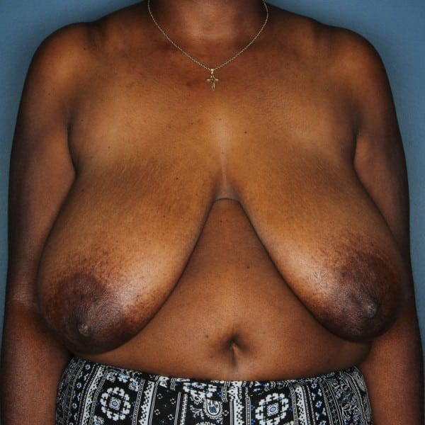 Breast Reduction Patient 24 Before