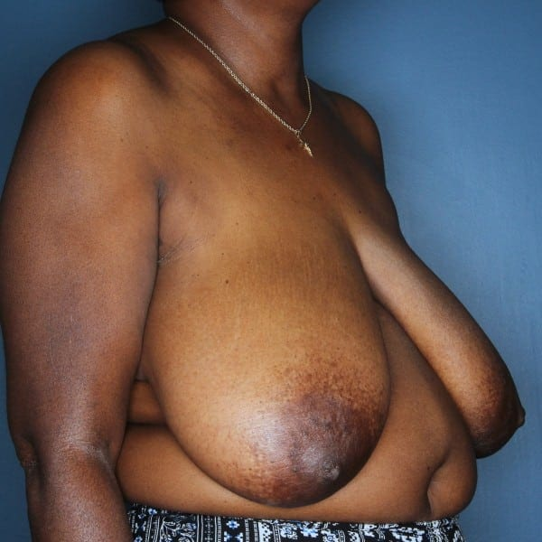 Breast Reduction Patient 24 Before - 2