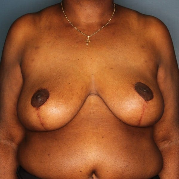 Breast Reduction Patient 24 After