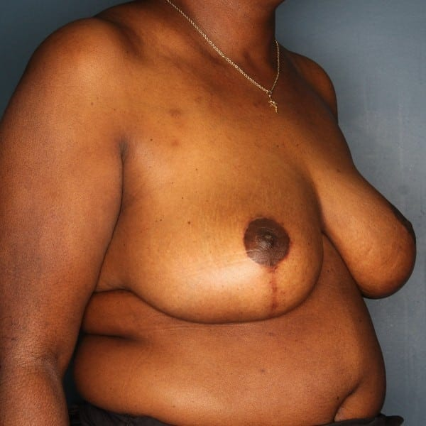 Breast Reduction Patient 24 After - 2