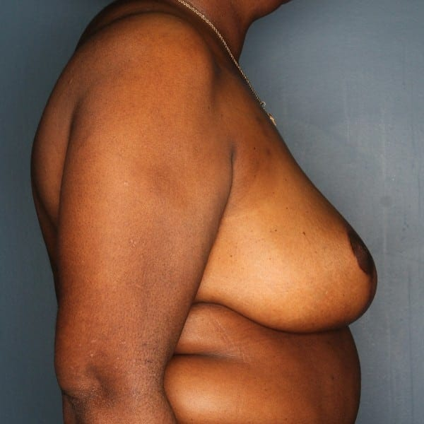 Breast Reduction Patient 24 After - 3