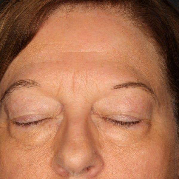 Blepharoplasty Patient 02 Before - 3