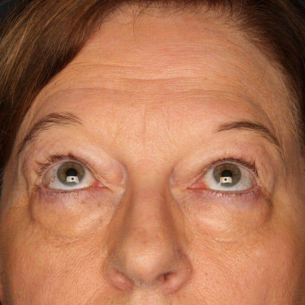 Blepharoplasty Patient 02 Before - 2