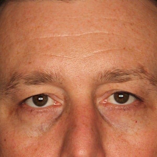 Blepharoplasty Patient 01 Before - 1
