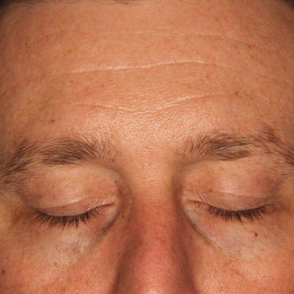 Blepharoplasty Patient 01 Before - 2