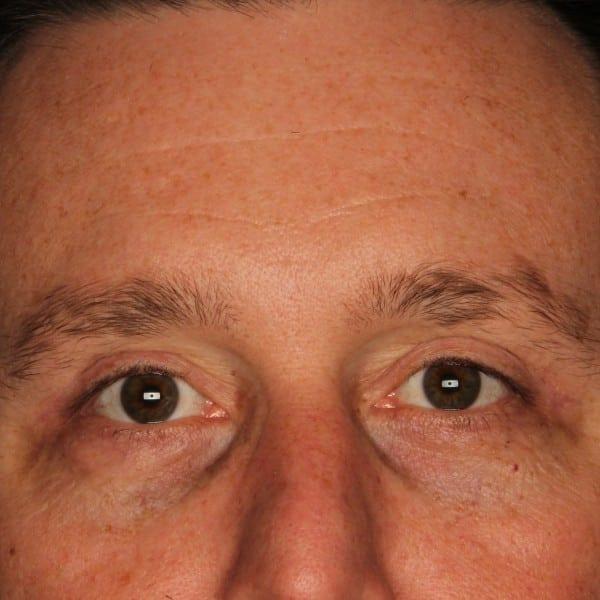 Blepharoplasty Patient 01 After - 1